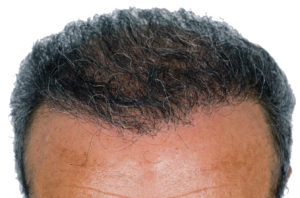 male pattern baldness Hair Transplants, Revivogen